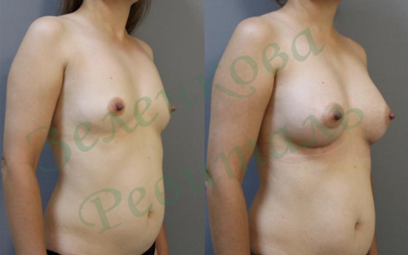 Увеличить размер груди за 2 недели
