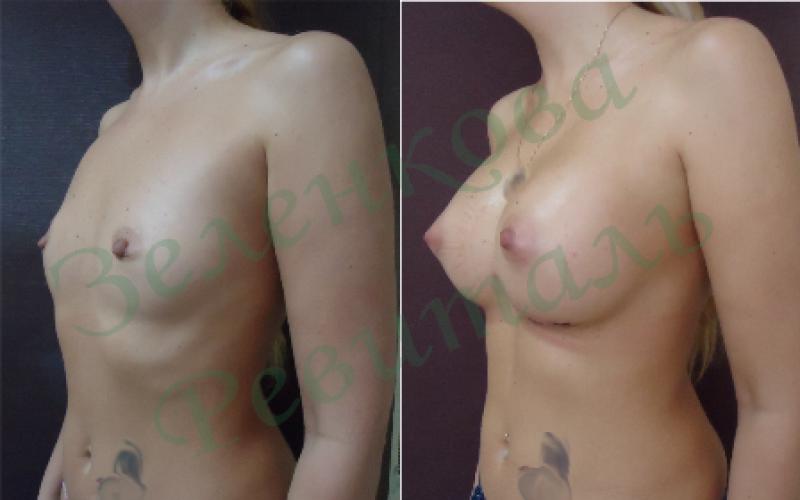 Инъекции увеличивающие грудь