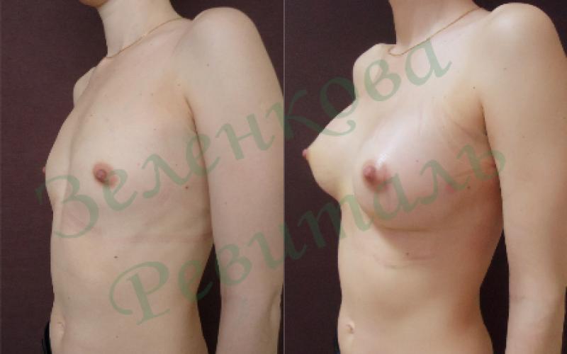 Опасны ли крема для увеличения груди