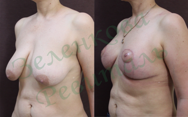 Какая на ощупь грудь с имплантами