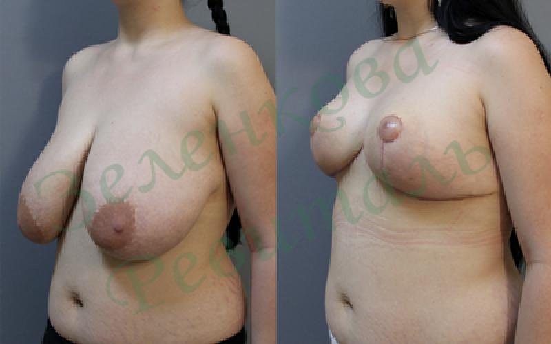 Как делают пластическую операцию на груди